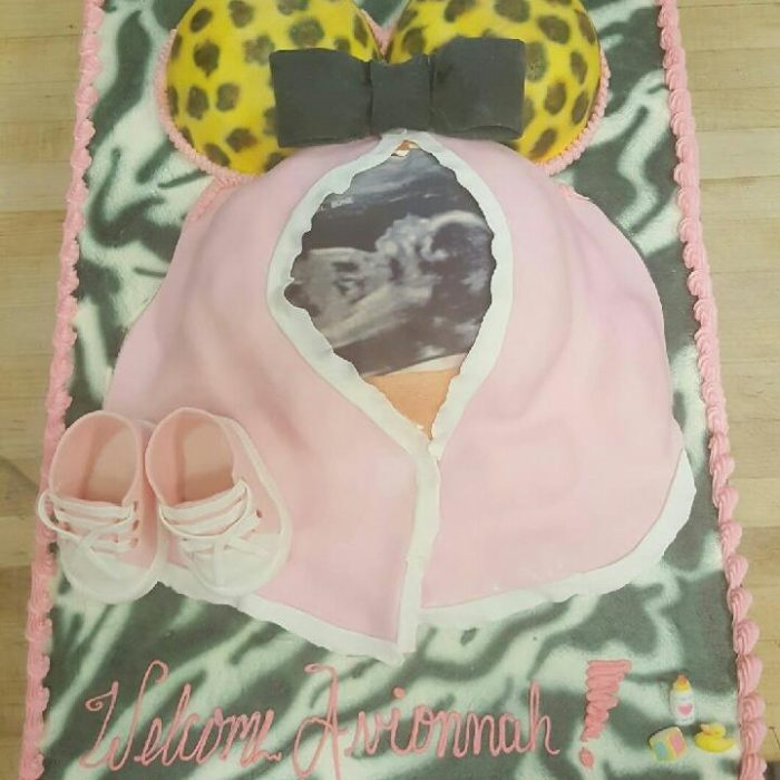 baby nump cake with ultrasound